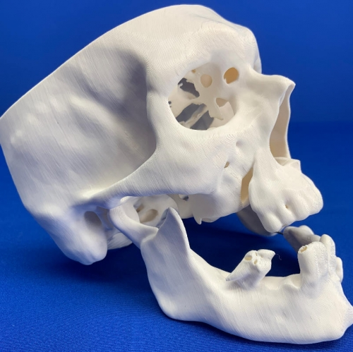 Full Scale 3D Printed Litigation Model: Skull with Broken Jaw & Dislodged Teeth